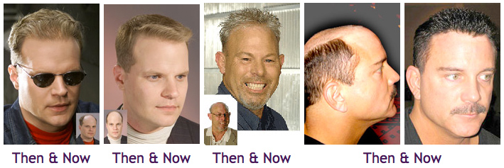 Hair Replacement Vivandi One Stop Solutions For Hair